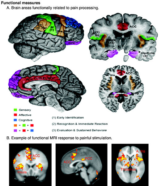 Caption on http://en.wikipedia.org/wiki/Pain : Regions of the cerebral cortex associated with pain.  Authors: Borsook D, Moulton EA, Schmidt KF, Becerra LR., © 2007 Borsook et al; licensee BioMed Central Ltd.