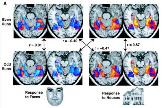 Caption on http://en.wikipedia.org/wiki/FMRI : These fMRI images are from a study showing parts of the brain lighting up on seeing houses and other parts on seeing faces. The 'r' values are correlations, with higher positive or negative values indicating a better match.  Image from the US National Institute for Mental Health.